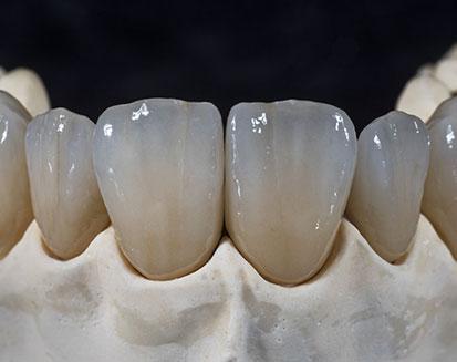 Bottom Teeth